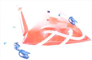 バルク回収